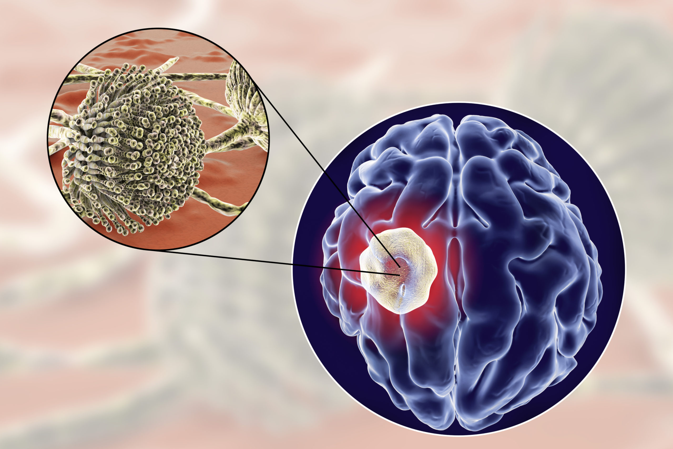 Aspergilloma of the brain and close-up view of fungi Aspergillus